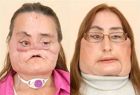 Mujer desfigurada por una bala