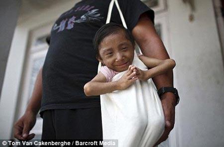 El hombre mas pequeño del mundo en Nepal