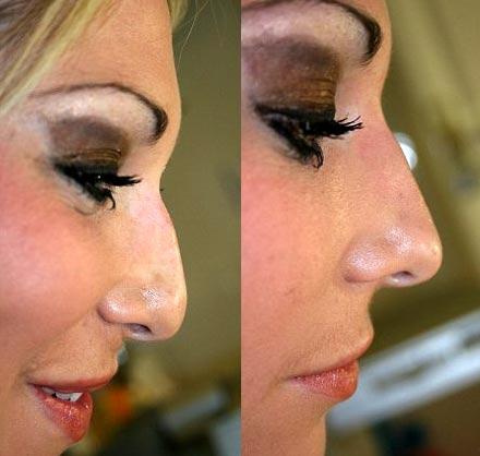 Antes y despues del nuevo procedimiento para la nariz