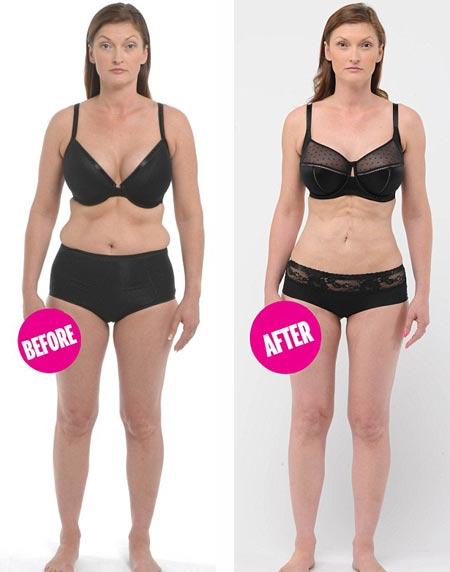 Elsa Visser de 35 años, testimonio del procedimiento para eliminar grasa del estómago