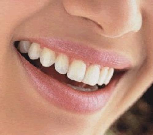 dientes mas blancos de manera natural