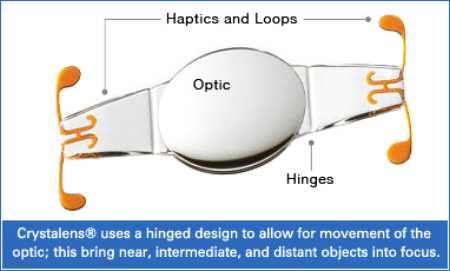Implante de lentillas para vision HD