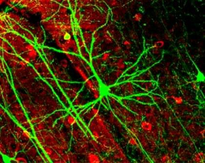 Imagen de las neuronas