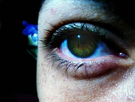 Ojeras en una mujer