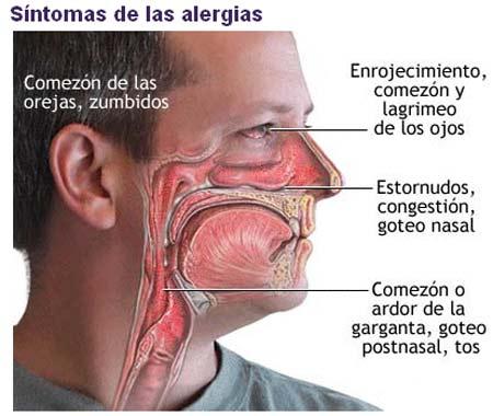 congestion nasal, problema habitual entre las personas