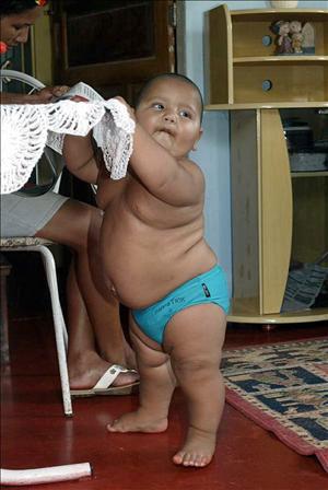 alto indice de obesidad infantil