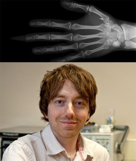 Implante en la mano de una persona con un virus informatico