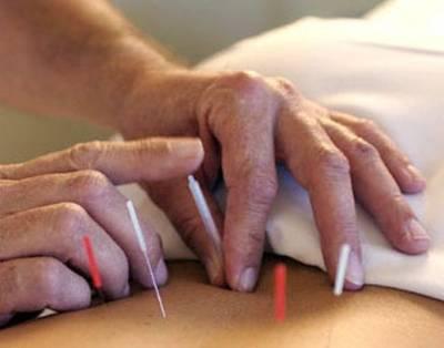 Terapia de acupuntura