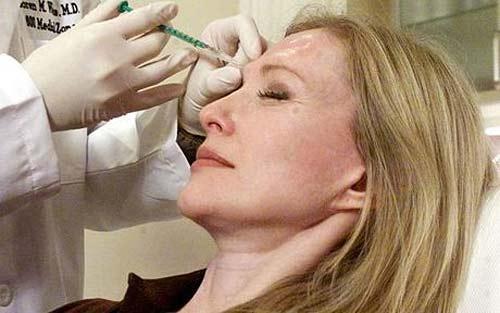 Inconvenientes del Botox