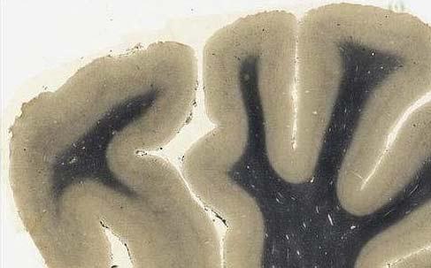 Lanzan app de autopsia del cerebro de Einstein