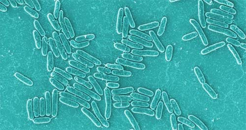Bacterías de la Tierra peligrosas