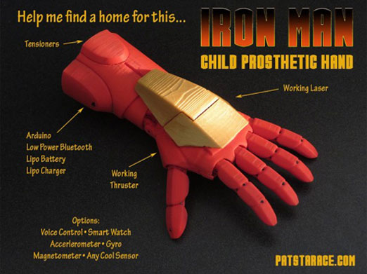 prótesis de mano para niños